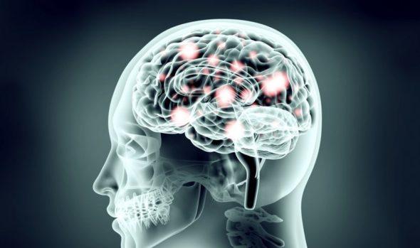 Radiografia czaszki